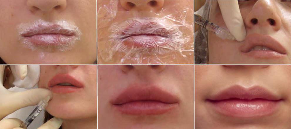Увлажнение губ уколами