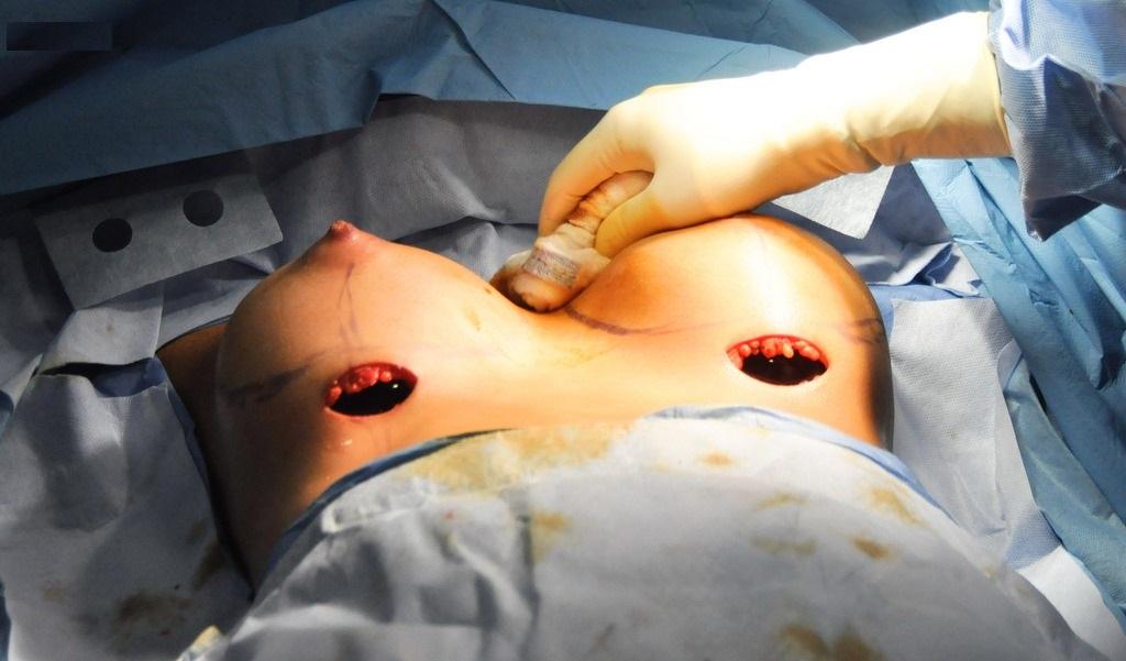 Вставить имплантант в грудь