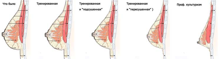 Как увеличить грудные железы домашних условиях за 1 день 445