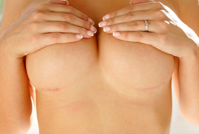 Шрамы под грудью после увеличения груди
