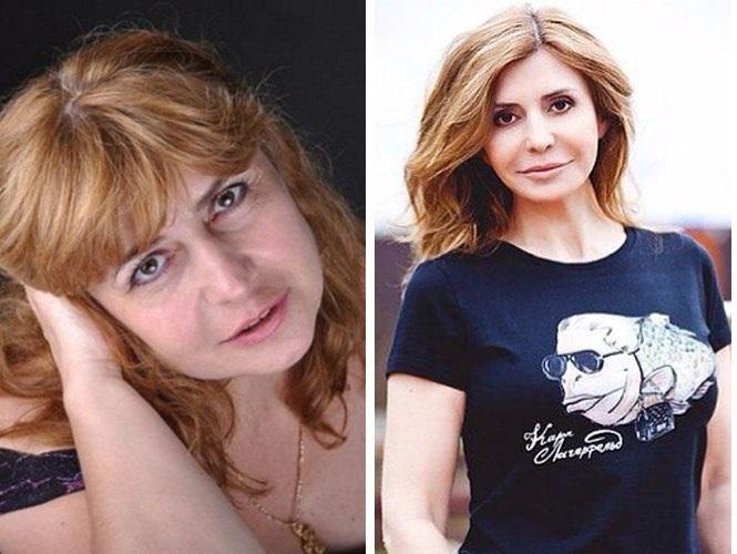 Ирина Агибалова до и после пластики