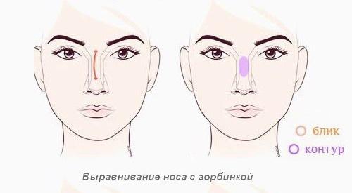 Выравнивание носа с горбинкой