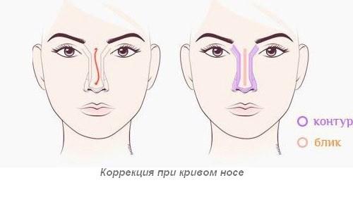 Исправляем кривой нос