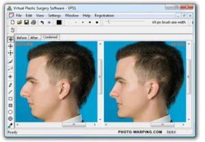 Компьютерное моделирование носа при ринопластике