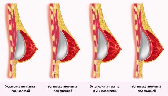 Способы расположения импланта