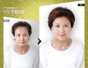 Пластические операции в Корее