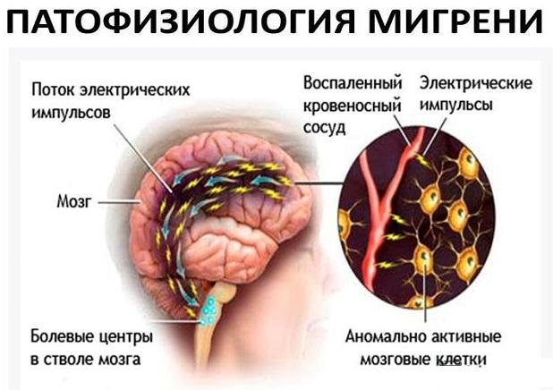 Ботокс от мигрени