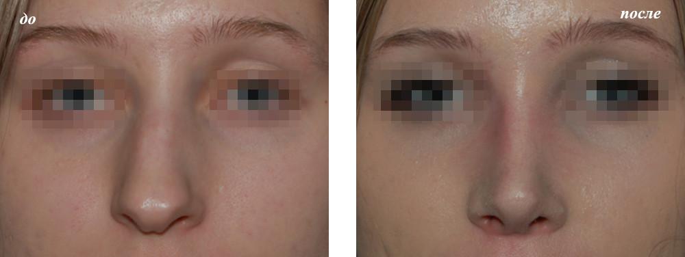 Как изменить кончик носа