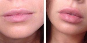 Отёк после увеличения губ