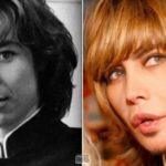 Пластика звезд до и после - Сергей Зверев