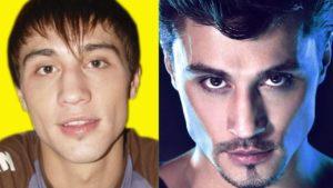 Пластика звезд до и после - Дима Билан