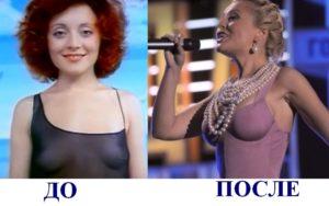 Пластика звезд до и после - Анжелика Варум