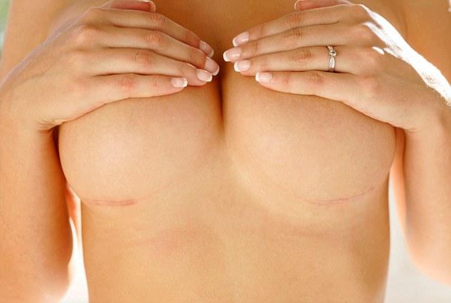 Рубцы после увеличения груди