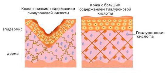 Препараты для увеличения губ