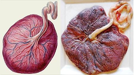 Преждевременное старение плаценты