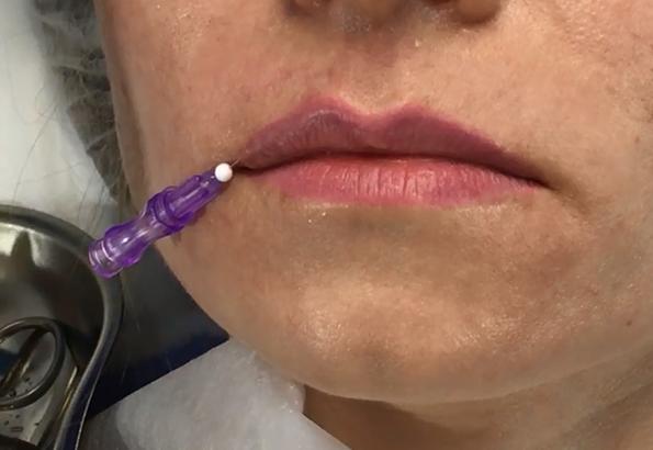 Нити для увеличения губ