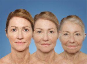 Виды и психология старения