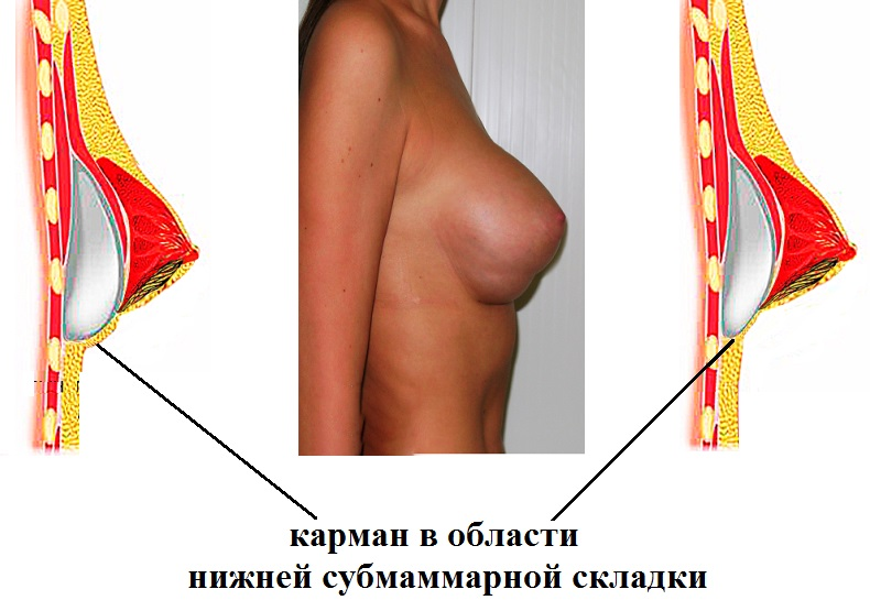 Эффект дабл-бабл после маммопластики