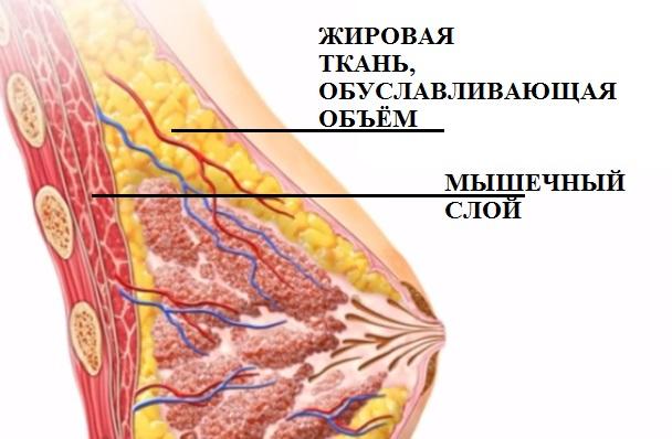 Аугументационная маммопластика
