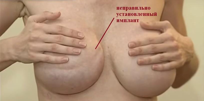 Последствия маммопластики