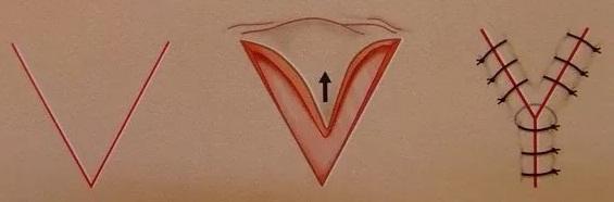 Хейлопластика V-Y