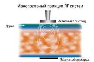 RF лифтинг