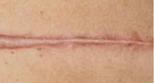 Гипертрофический шрам после маммопластики