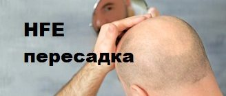 Метод пересадки волос hfe