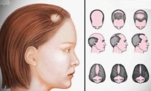 Пересадка волос: алопеция