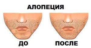 Пересадка волос: алопеция на лице